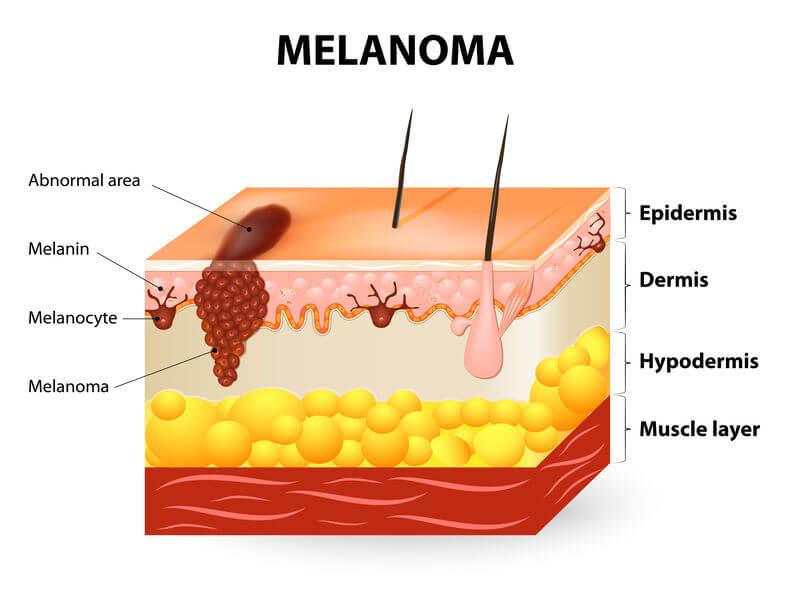 מלנומה - סרטן העור