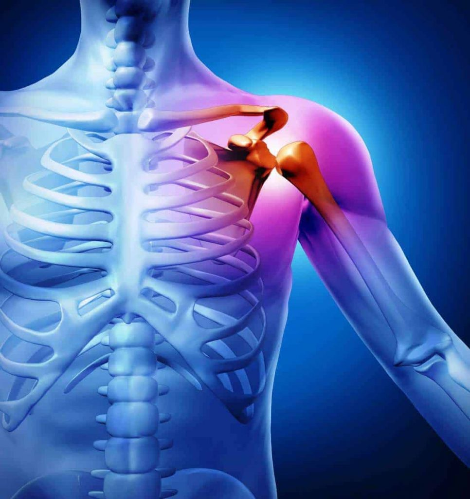 A tear in the shoulder - disability percentage