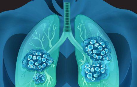 זכויות בביטוח לאומי ובמס הכנסה לחולי סרטן ריאות